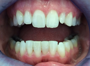 Post Smilelign Treatment