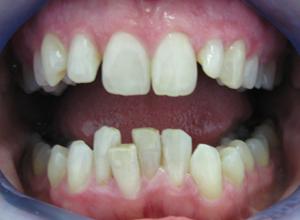 Pre Smilelign Treatment