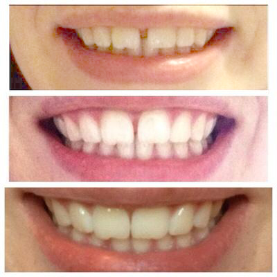Before - During - After Smilelign Progress