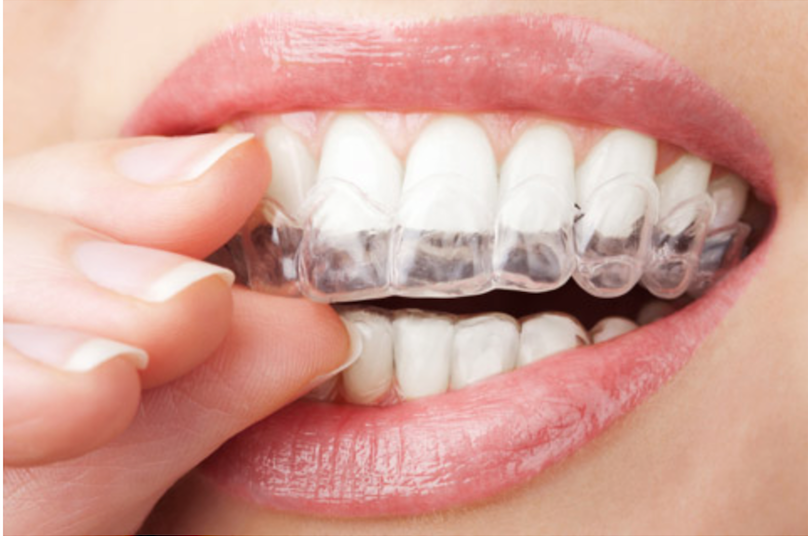 Smilelign Clear Braces