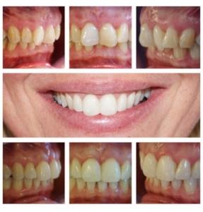 Smilelign blog.jpg