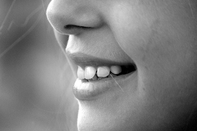 buck teeth.jpg