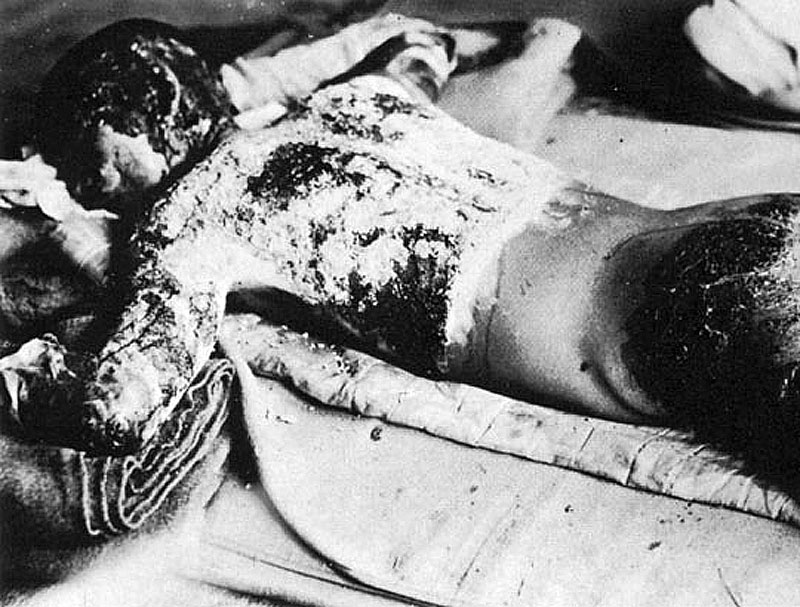 Victim of the atomic bombing of Hiroshima (Wikimedia Commons)