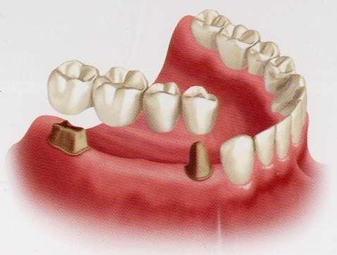 several-teeth-2.jpg