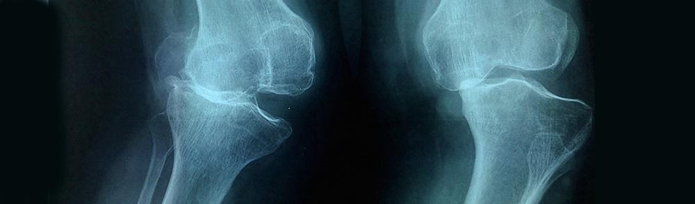 bad knee xray 409 pre.jpg