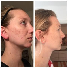 A three month before and after photo of a patient with chronic skin issues.