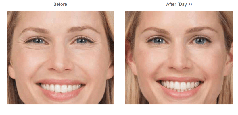 botox-cosmetic-before-after2-large.png