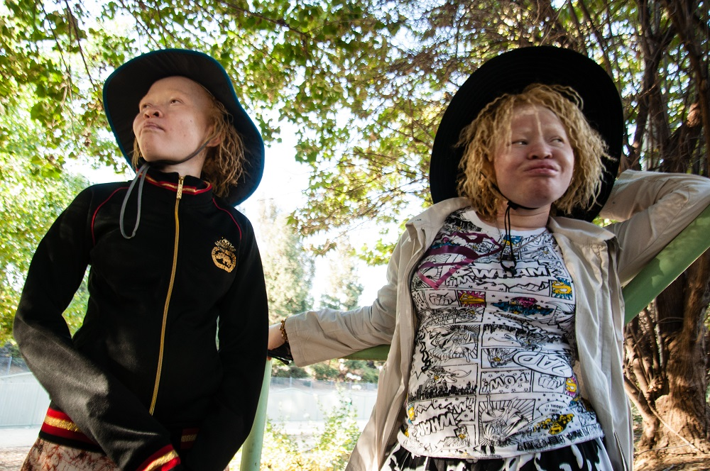 Gerber_K_Beyond_Albinism 2.jpg