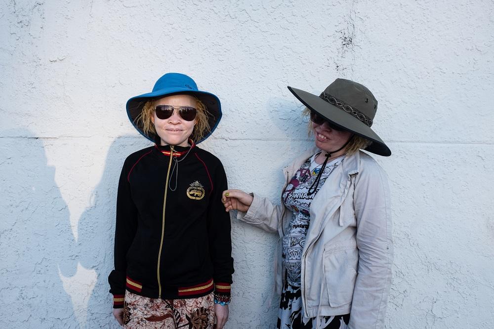 Gerber_K_Beyond_Albinism 4.jpg
