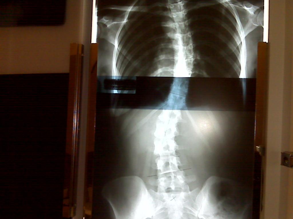 S Curve Scoliosis