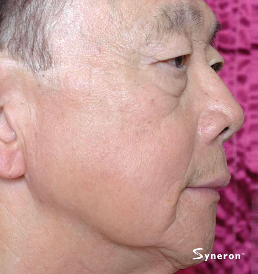 ST_012_Dr.Shieh_After-1-Treatment.jpg