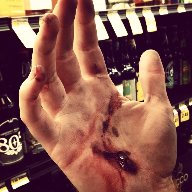 Sawyer's bloodied hand after a long day of skating street spots in Lake Forest, Ca