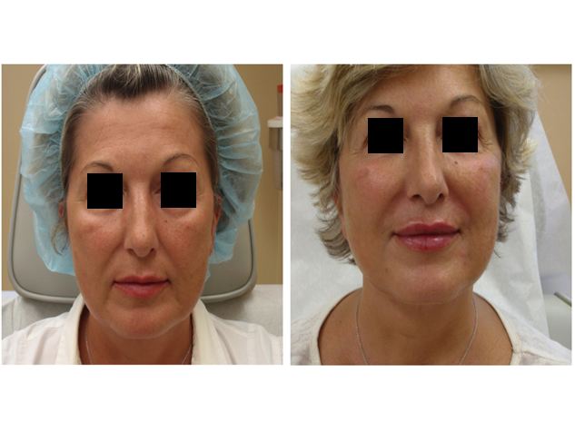 Juvederm   in the lips, smile lines and cheeks