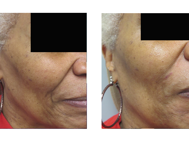 Marionette lines are the vertical lines that start at the corners of your mouth and run down to your chin. Note the improvement of the above patient's marionette lines with  Juvederm .