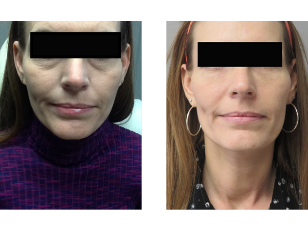 Fillers can reduce the appearance of puffy and tired eyes. Tear troughs were corrected with  Juvederm.