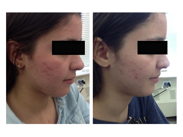 Microneedling  is a great option for acne scaring. The above patient only had one treatment and noted improvement.