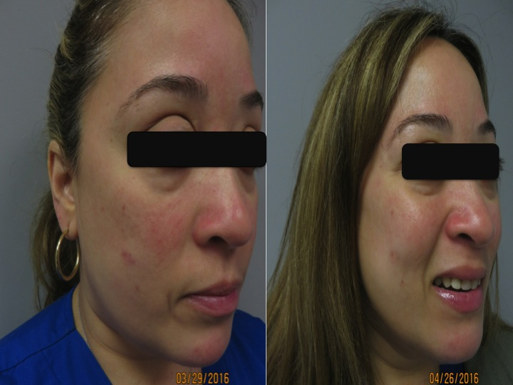 Note the reduction in the redness and acne like lesions in less than one month. She is ecstatic!