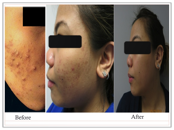 After the acne was controlled, her acne scars were treated with microneedling.