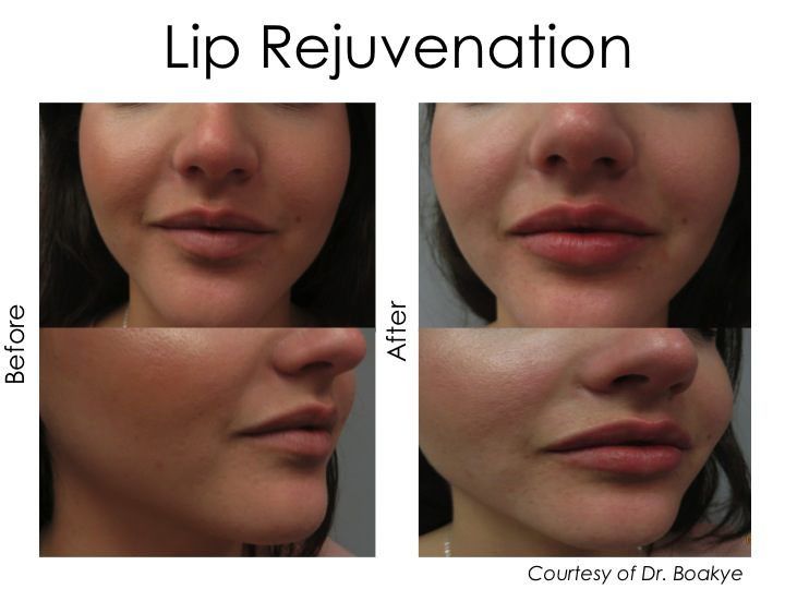 Lip Rejuvenation can be achieved with fillers for a smoother and more youthful lip. The goal is to make it look natural. Restylane silk was used during this treatment.