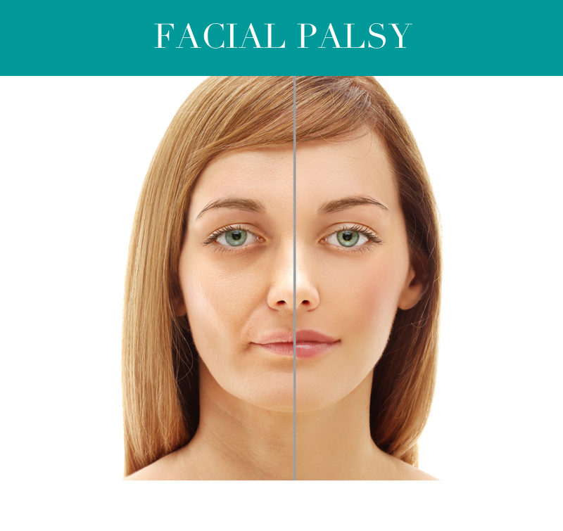 facial palsy london