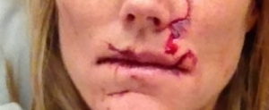 Example of Nasty facial laceration with multiple separate cuts