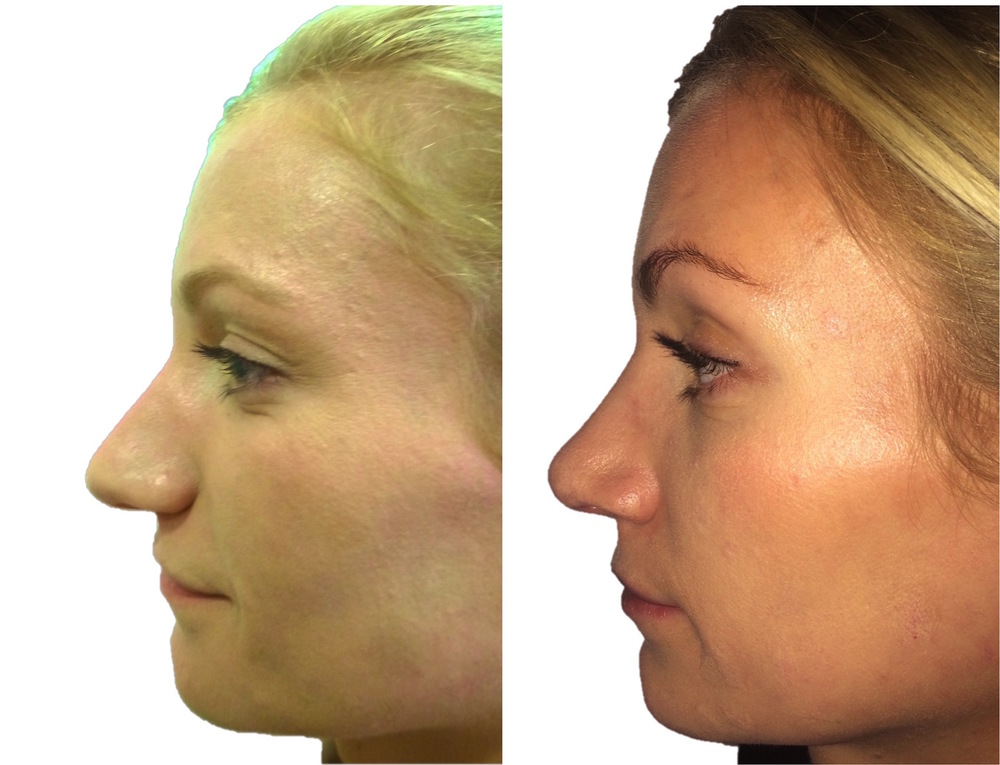 rhinoplasty surgery consultation