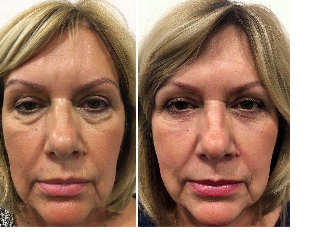 Before and after lower eyelid blepharoplasty to remove lower eyelid bags - achieving a natural and refreshed look is the goal of surgery!
