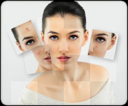 break free from acne