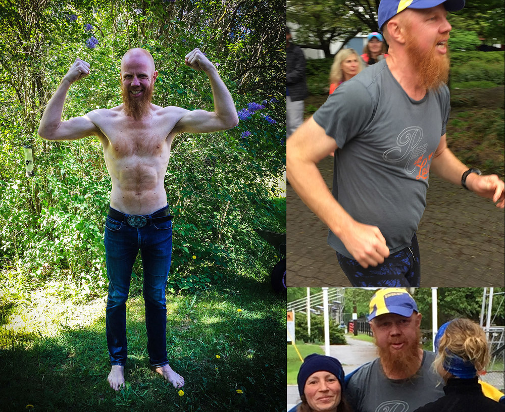 Bilderna till höger är från Johnnys 6-dagarslopp i USA och är tagna under sista dygnet. Johnny blev svullen först under sista dygnet av sitt 6-dagarslopp, trots stark värme och nästan 15 mils löpning per dygn. Då upplevde han också starkare törst och andra symtom på extrem trötthet och förvirring. Bilden till vänster är tagen när svullnaden gått ner. All den här vätskan kissade och svettades han bort dygnen efter målgång och det är inte ovanligt att man tappar flera kilo i vikt som bara består av extra vätska.