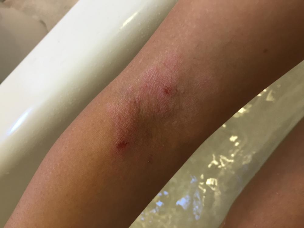 skin 2 october 2015.png
