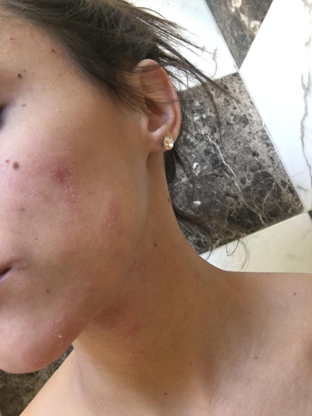 skin 4 october 2015.png