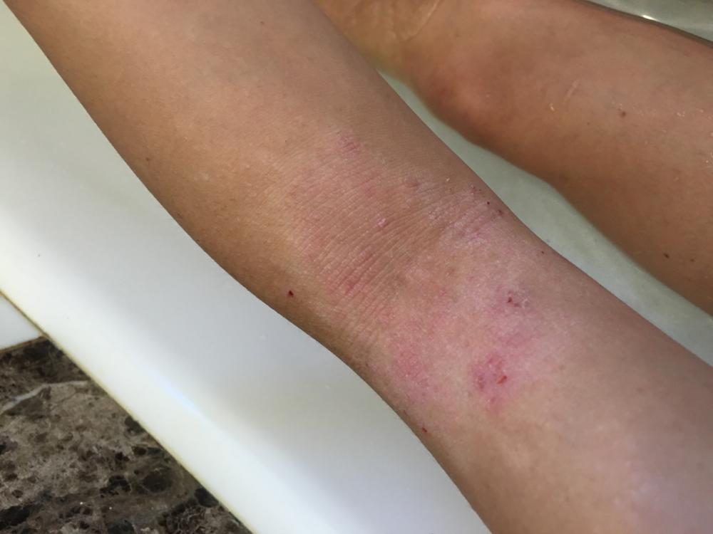 skin october 2015.png