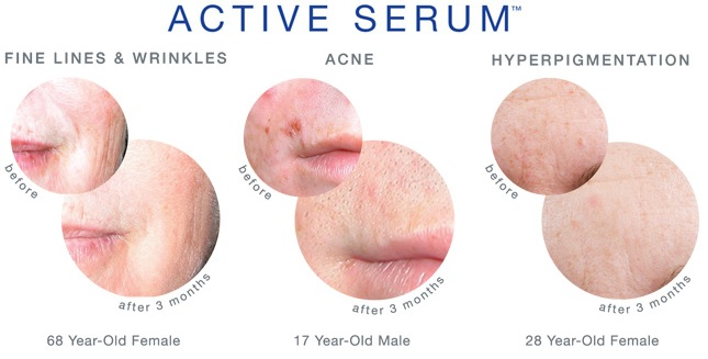 active serum before and after.jpg
