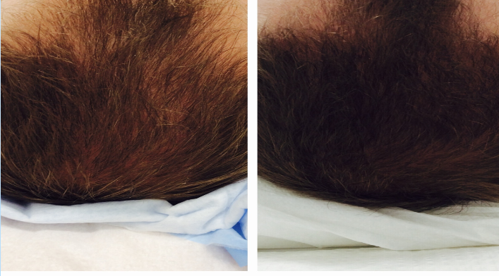 Before and after 3 PRP treatments                                                                                                                   *Picture posted with patient's permission