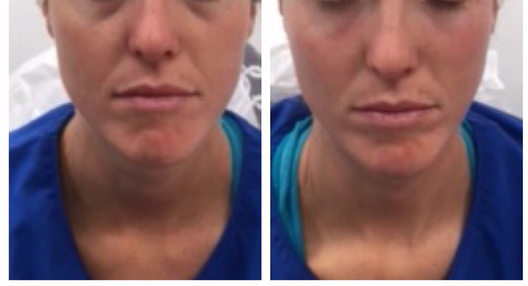 Tear trough injections before and after