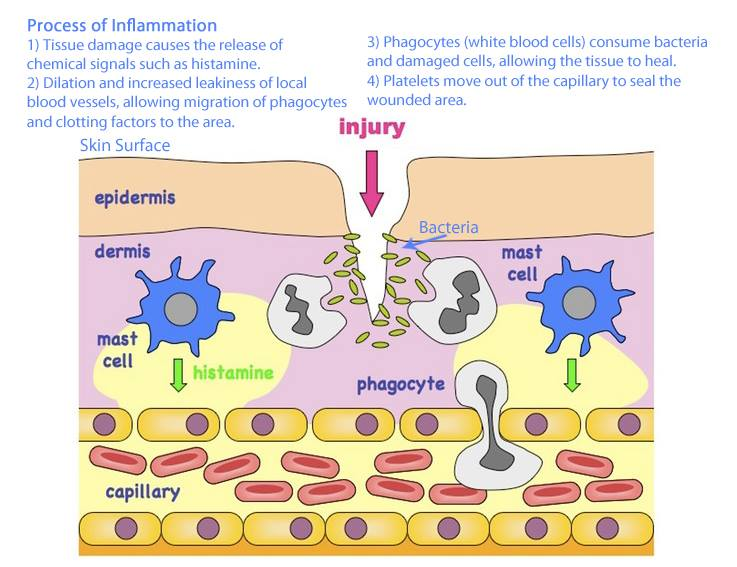This image provides an overview of the inflammatory process (image credit: lakeviewosteopathy.co.uk )