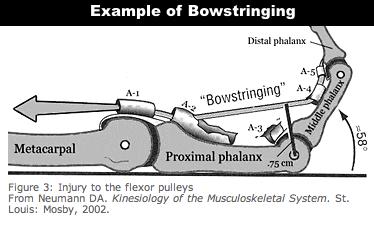 bowstringing-neumann-1.png