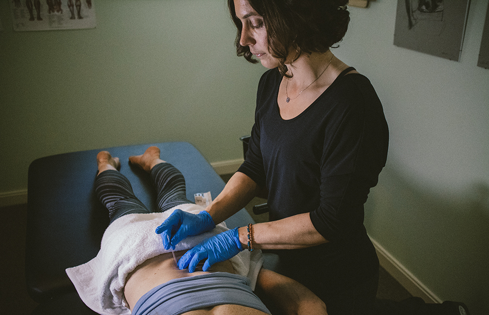 Dry Needling Therapy
