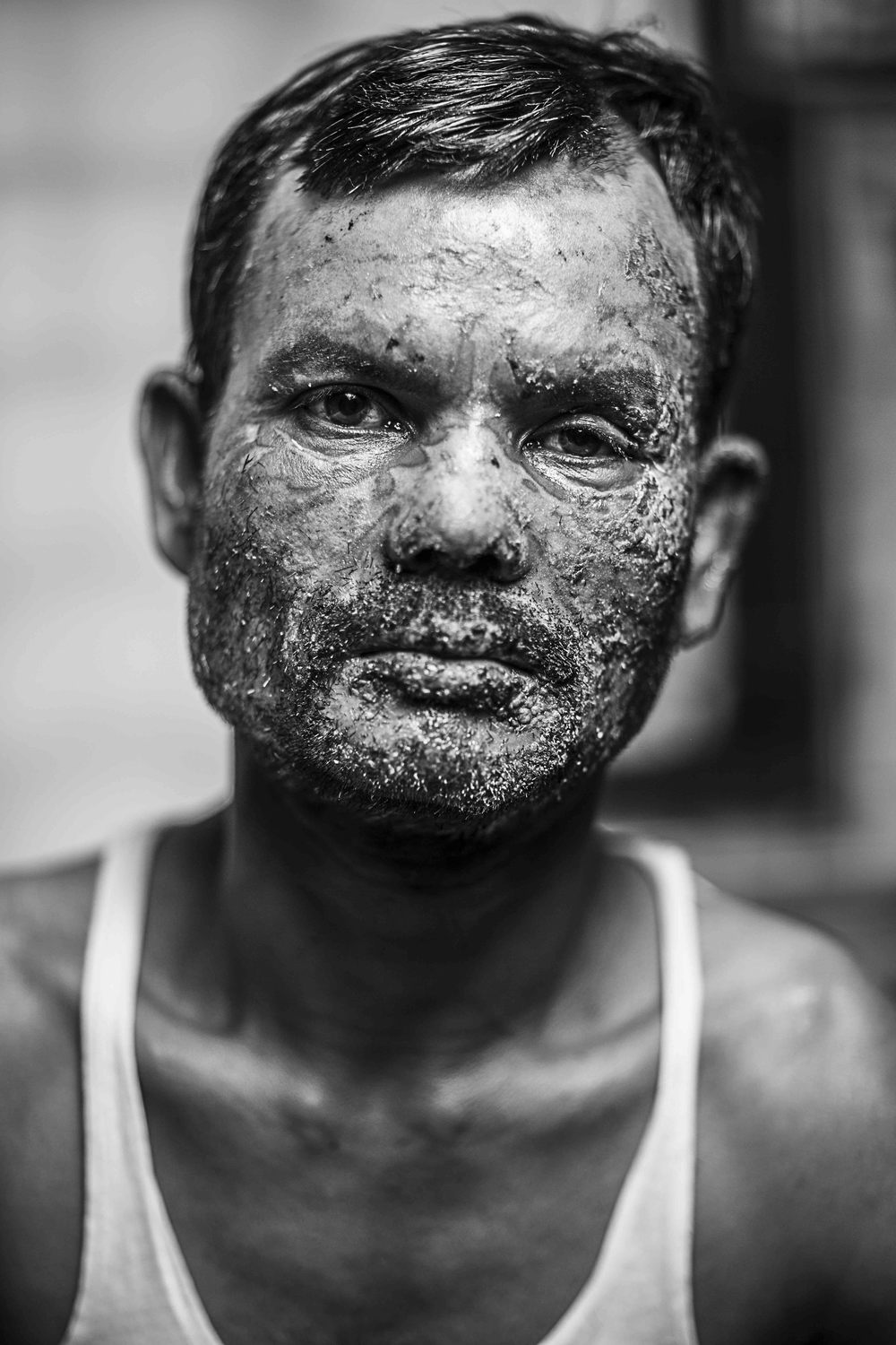 Alamgir Hossain, 40 years old a vegetable trader from Gazipur, was admitted to Dhaka Medical College Hospital (DMCH) with burns to 11% of his body on the 02/01/2014 when opposition activists hurled a Molotov bomb at a vegetable-laden truck.