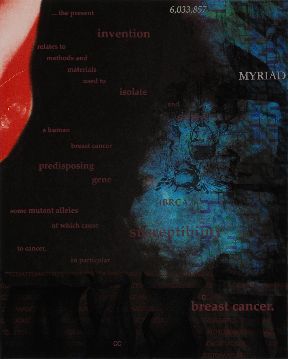 BRCA2: Myriad Susceptibilities 5C
