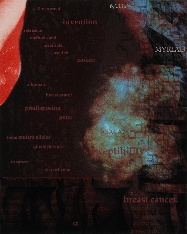 BRCA2: Myriad Susceptibilities 5B