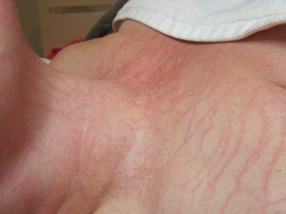 PLASMATIC EFFECT AFTER THE TREATMENT. SIGNS OF A HEALTHY SKIN. AND VERY TEMPORARY!
