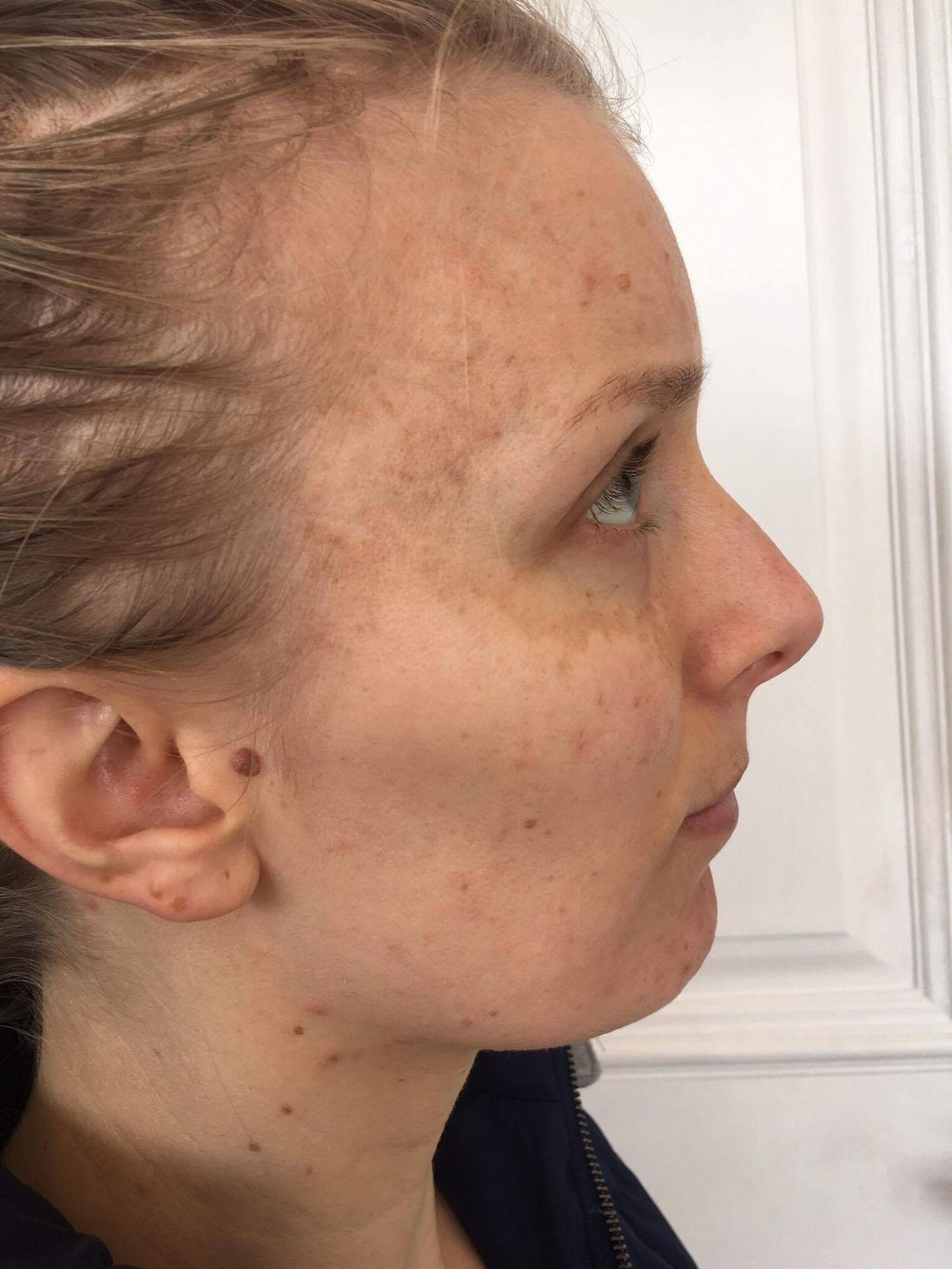 Depigmentation Cosmelan dermamelan melasma skin treatment