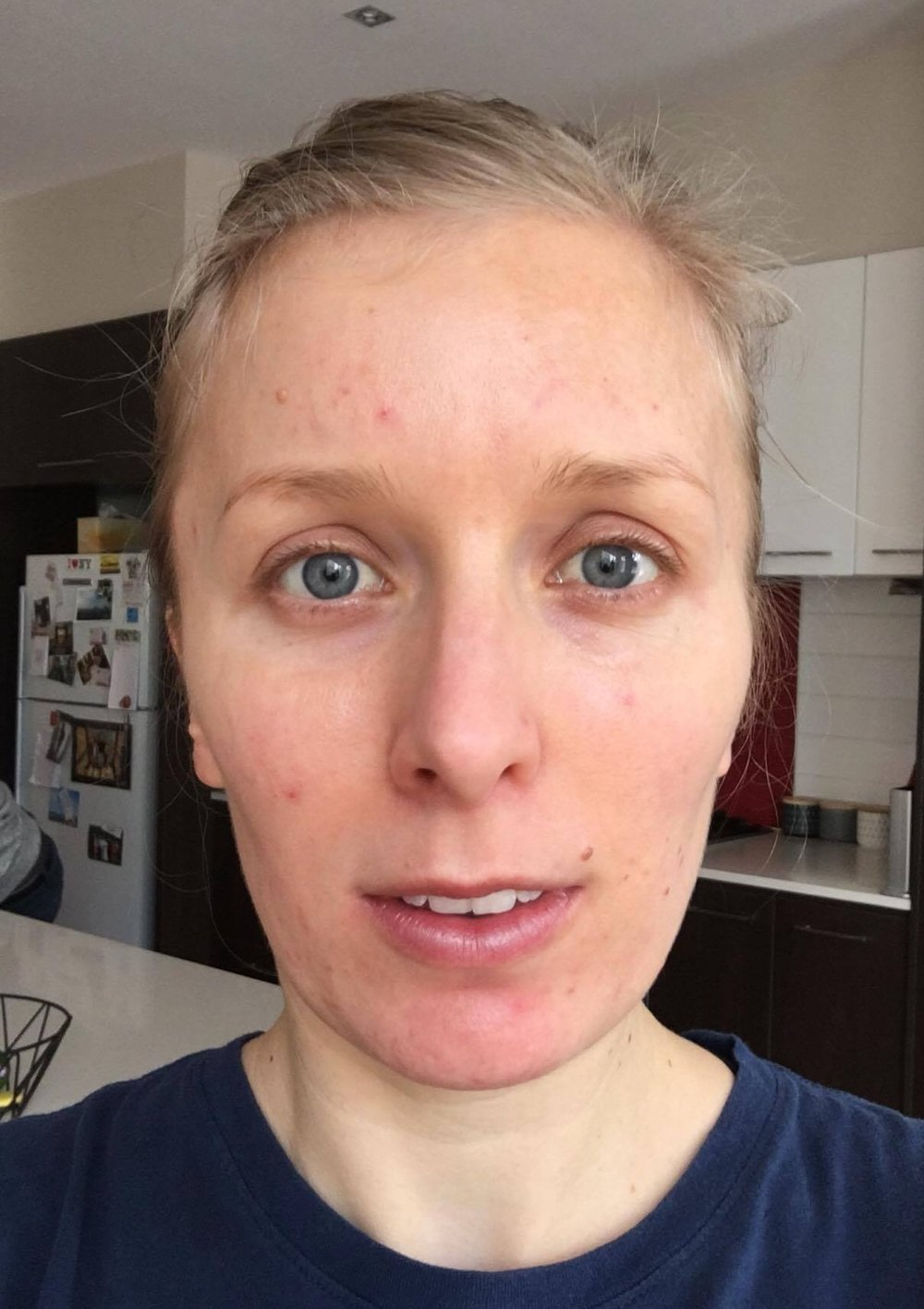 cosmelan dipigmentation peel pigmentation skin clinic melbourne