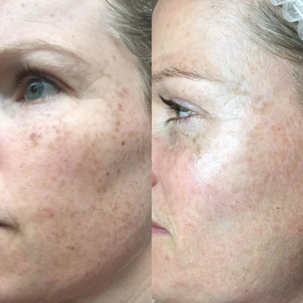 Cutera limelight IPL Skin Rejuvenation Melbourne pigmentation