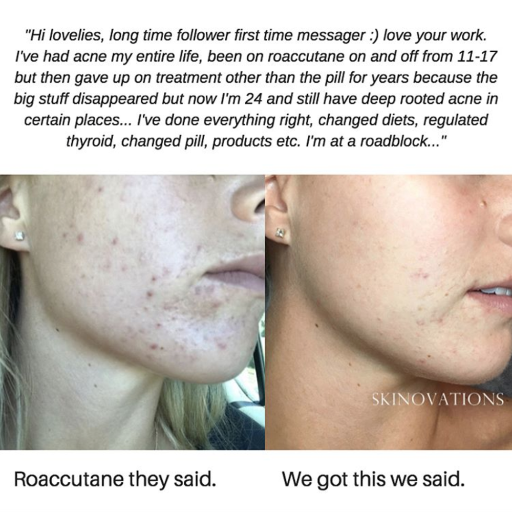 acne skin clinic melbourne