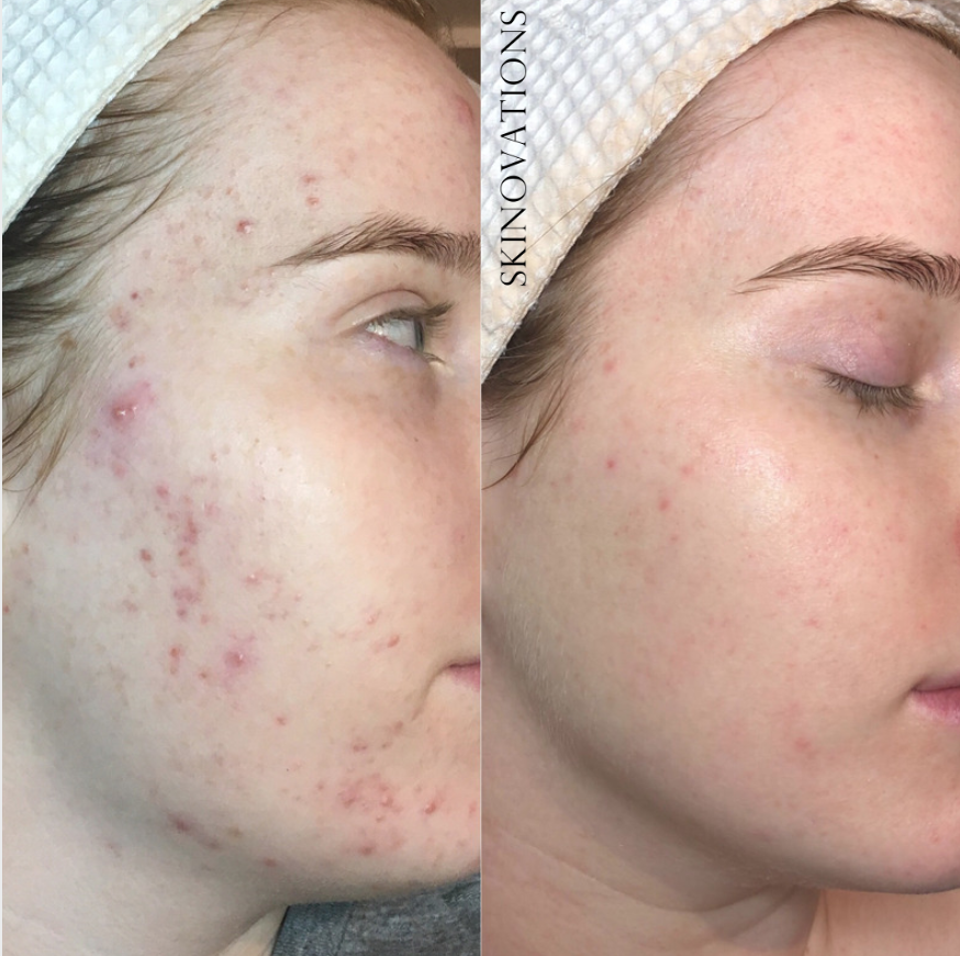 Acne Treatments + Scar Revision