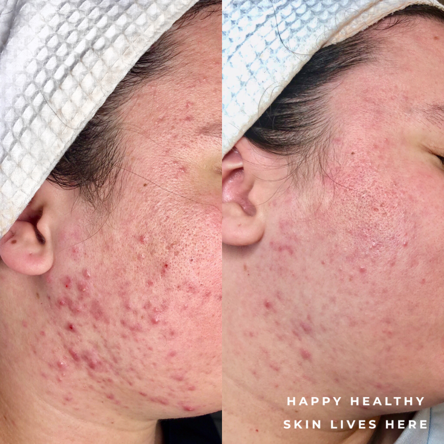 Skin Health Melbourne