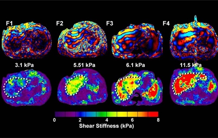MRE scan showing different degrees of stiffness in the liver in four different patients. The image on the far right with large red areas shows the most stiffness in the liver.