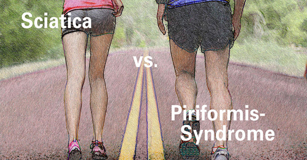Piriformis Syndrome vs. Sciatica - Is there a difference?